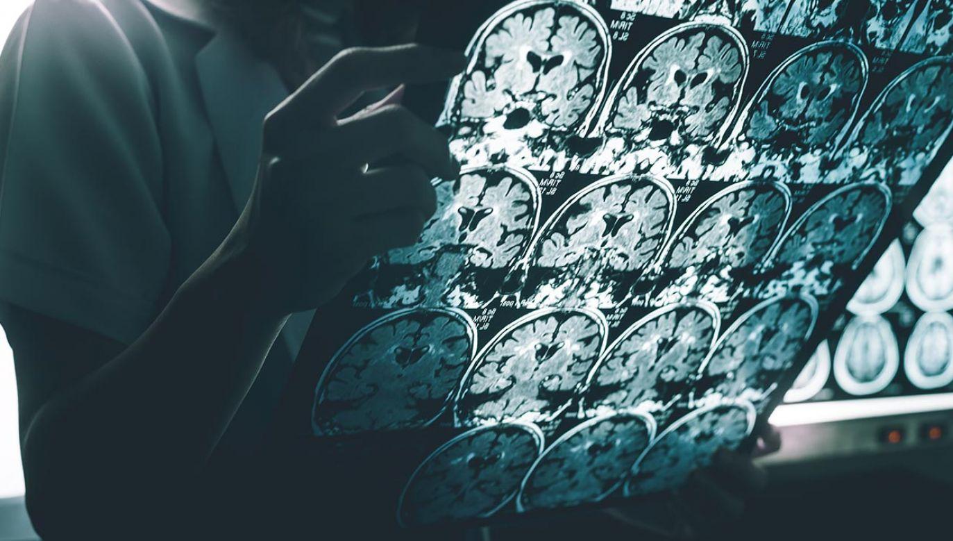 Czynniki środowiskowe mogą mieć wpływ na rozwój choroby Alzheimera (fot. Shutterstock/Atthapon Raksthaput)