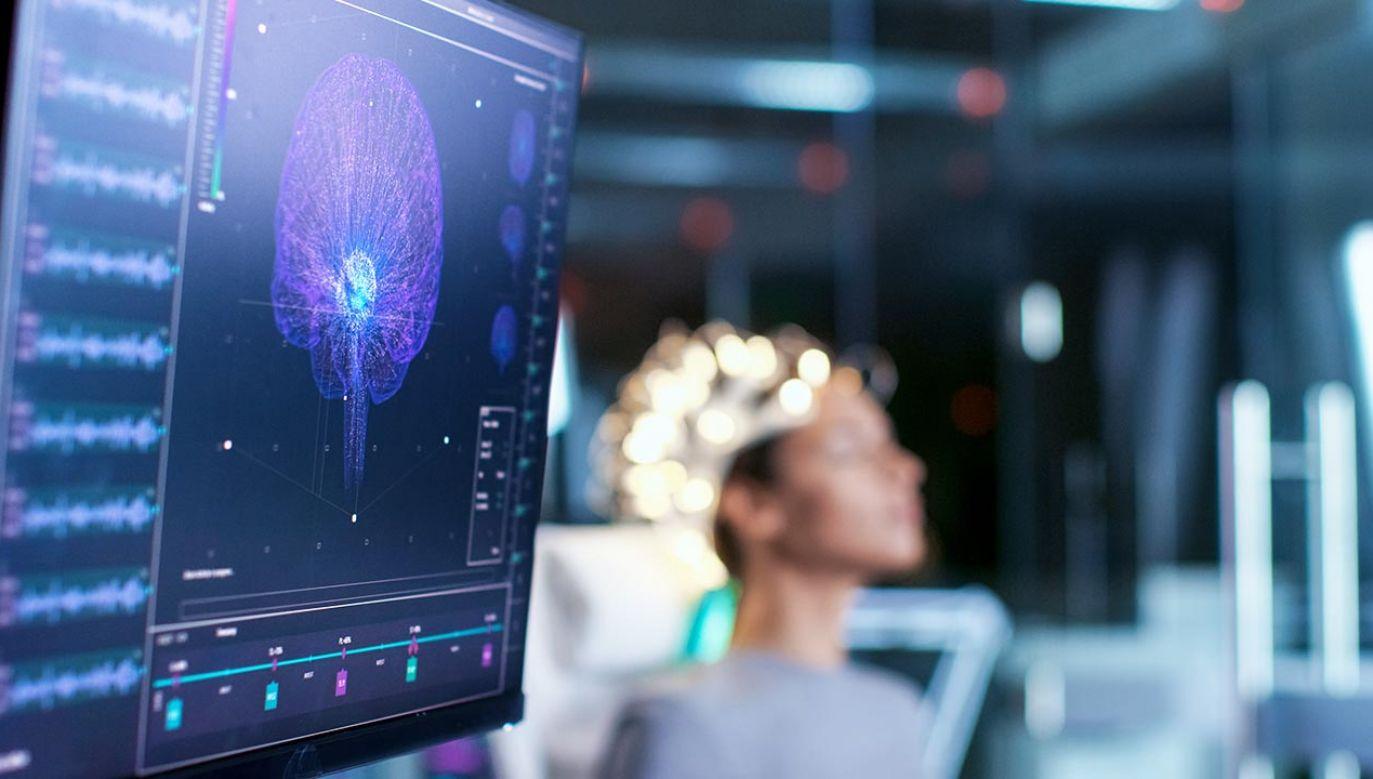 W mózgu jest 86 miliardów neuronów (fot. Shutterstock/Gorodenkoff)